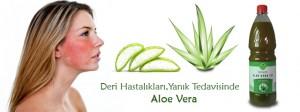 Deri Hastalıkları, Yanık Tedavisinde Aloe Vera